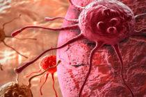 Հետազոտությունից պարզվել է, որ քաղցկեղների մեծ մասը ձեր հսկողությունից դուրս է
